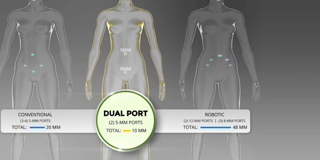 Outpatient procedures with DualPortGYN are safer than standard laparoscopy.
