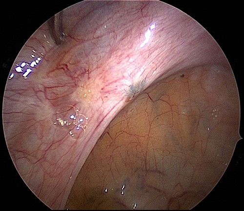 Endometriosis and Clear lesions