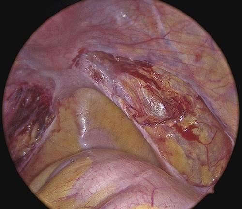 Endometriosis excision