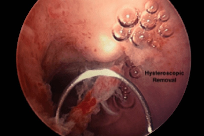 Hysteroscopic Removal