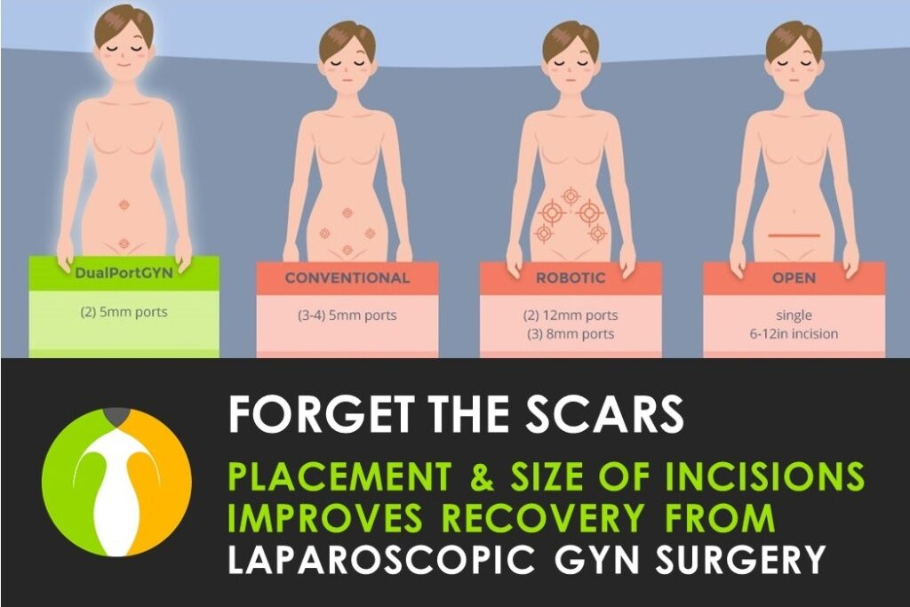 Laparoscopic GYN Surgery Scars