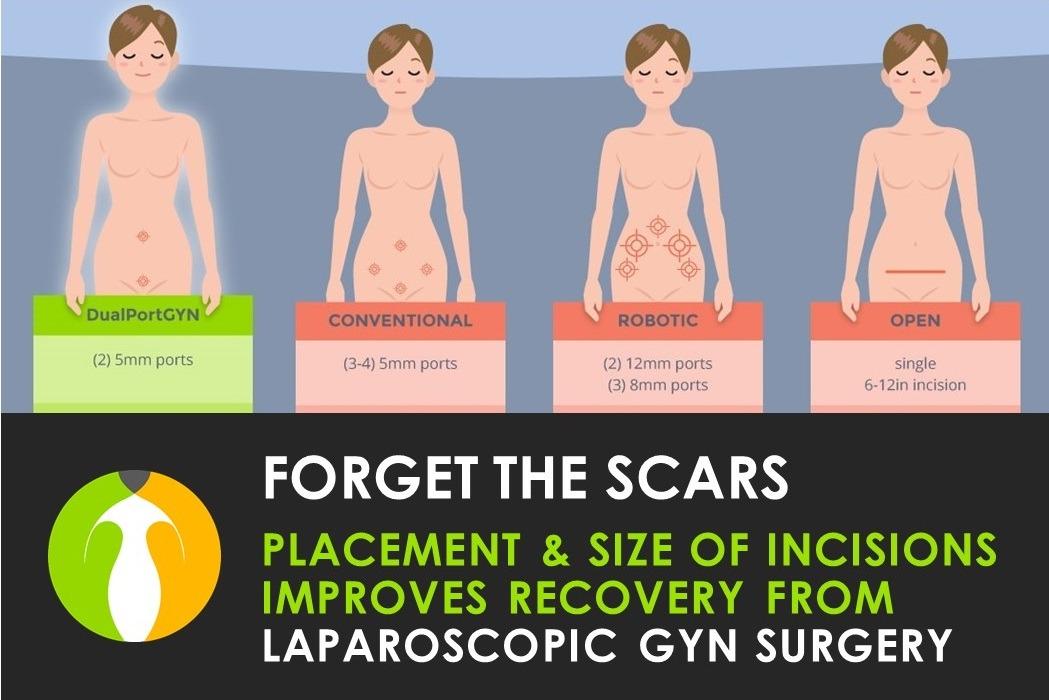 Laparoscopic GYN Surgery Scars