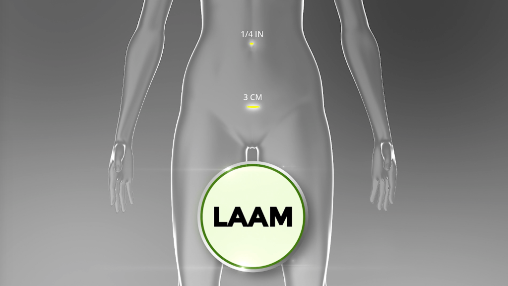 LAAM: Safer fibroid removal for fertility