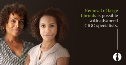 Large Fibroids Can Be Removed Laparoscopically with CIGC® Specialists