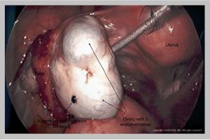 Ovary Endometrioma