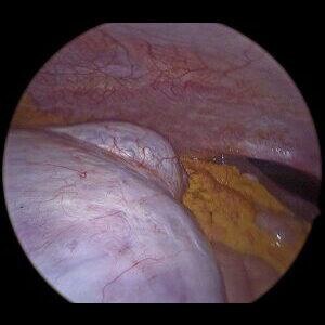 PIcture2-cyst-to-liver-500px-300×259