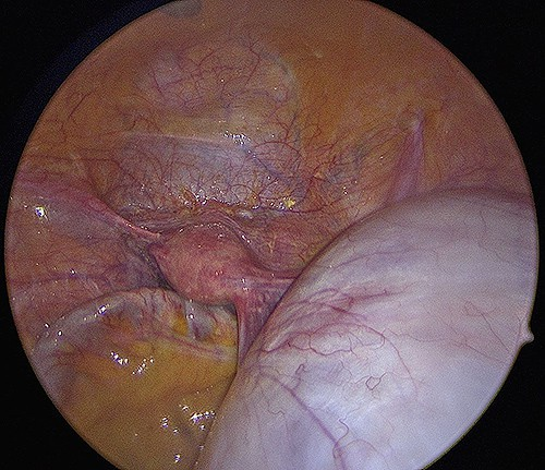large mucinous cyst right ovary