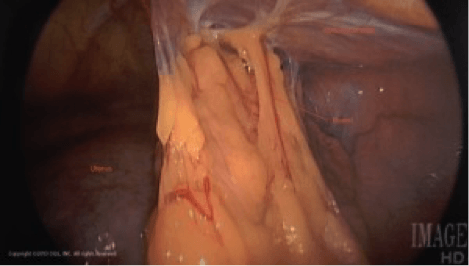 Resection-Pelvic-Adhesions