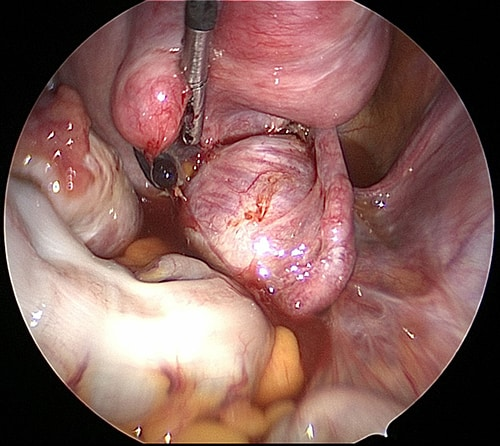 black endometriotic implant