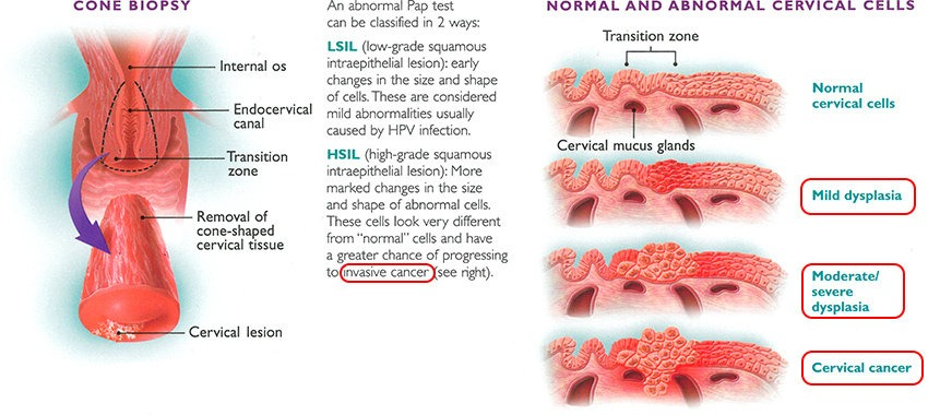 cervical-abnormalities-cancer
