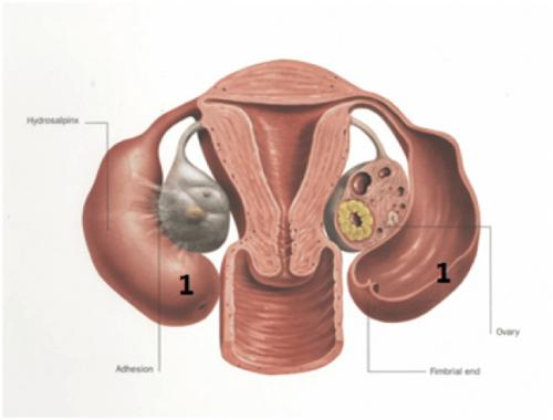 Anatomic-2