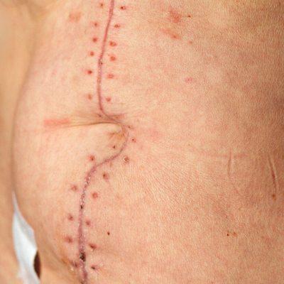myomectomy incision