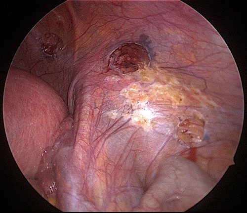 Endometriosis Cautery Excision