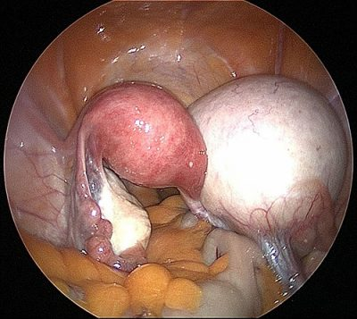 Large right dermoid cyst