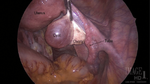 Ovarian-Cystectomy