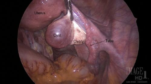 Ovarian-Cystectomy