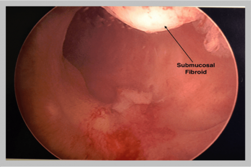 Submucosal-Fibroid