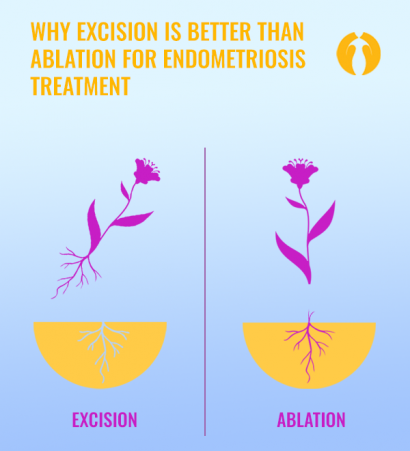 excision vs ablation carousel
