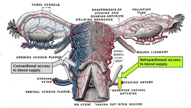 laam-fibroids
