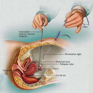 Performing Laparoscopy