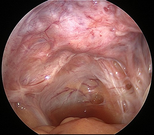 endometriosis adhesions rectum and sidewall