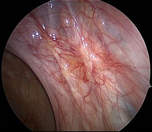 endometriosis to the US ligament