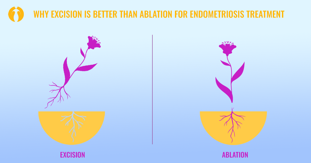 Why Excision Is Better than Ablation for Endometriosis Treatment