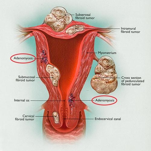 fibroid-adenomyosis-uterus