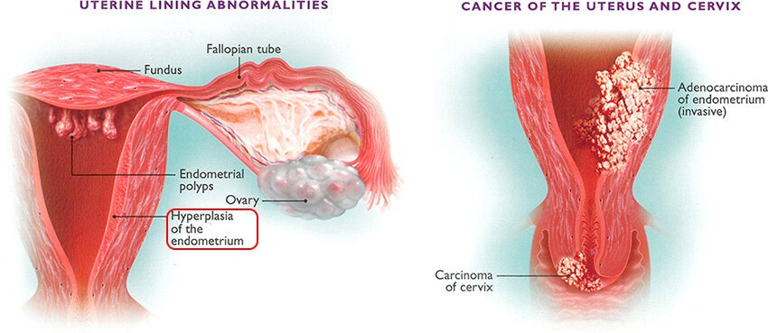 hyperplasia-cancer-uterus