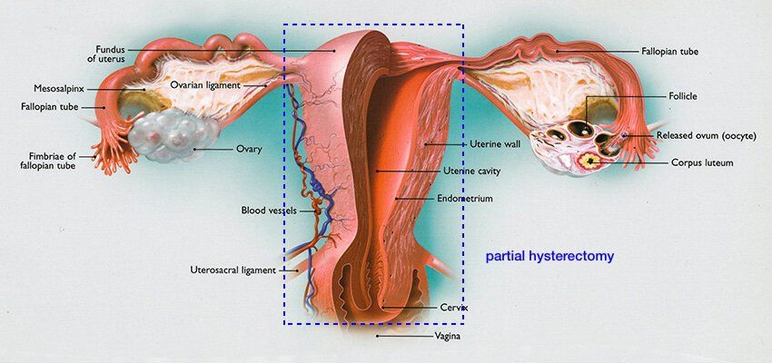 Wiring And Diagram  Diagram Of Uterus Ovaries And