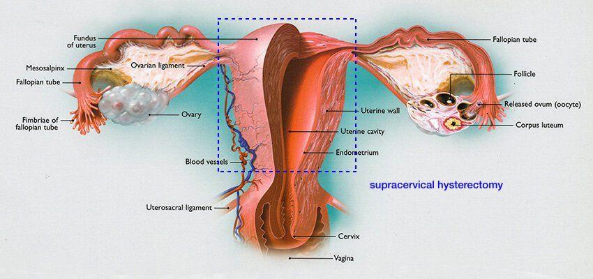 supercervical-hysterectomy